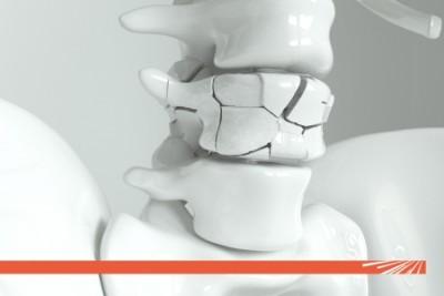 Campanie TESTARE GRATUITĂ osteodensitometrul calcaneu